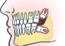 Wisdom Teeth Diagram